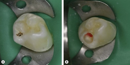 Pulpal Therapy For Primary And Young Teeth 11 Endodontics In Primary Teeth Pocket Dentistry
