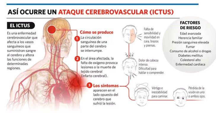 senales de un infarto cerebral