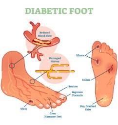 diabeti complications podiatry associates [ 1188 x 1044 Pixel ]