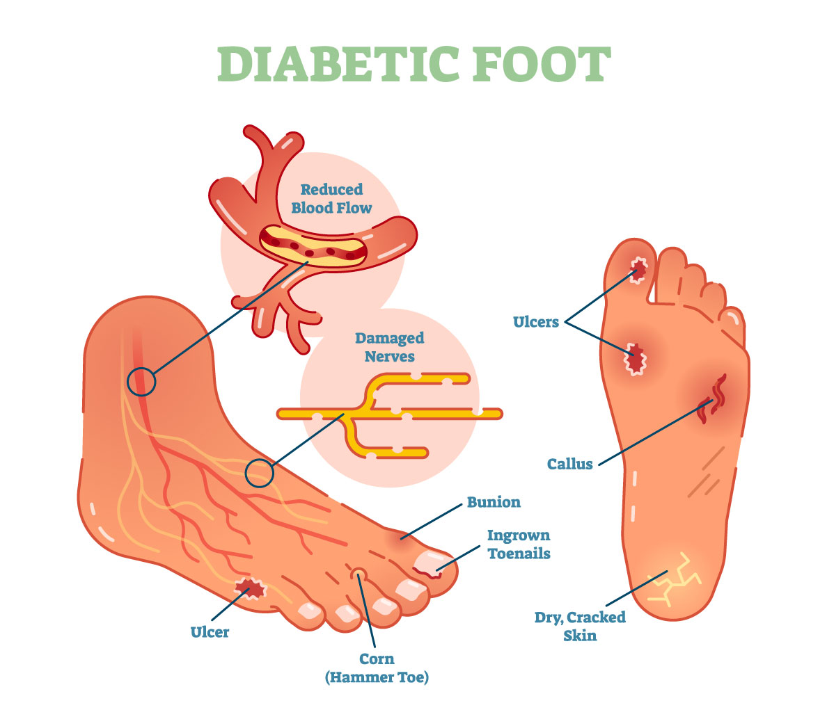 hight resolution of diabeti complications podiatry associates