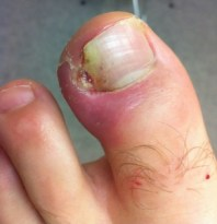 ingrown toenail lateral left hallux