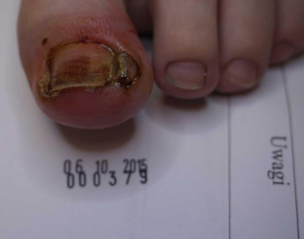 Wrastający paznokieć i stan zapalny