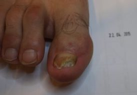paznokieć grzybiczy - grzybica paznokci