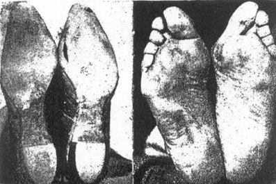 shoed-feet