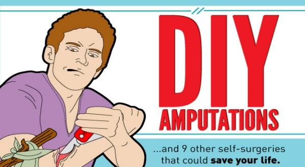 DIY-Surgeries