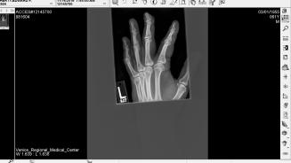 x-ray-2