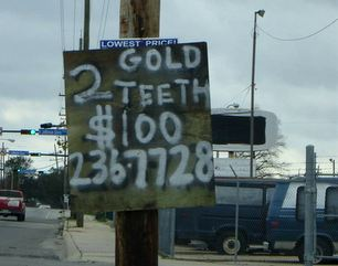 gold teeth for sale
