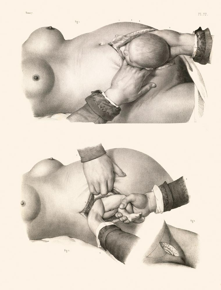 Disturbing Vintage Medical Illustrations Richard-Barnett 11