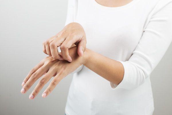 Świadectwo atopowe zapalenie skóry