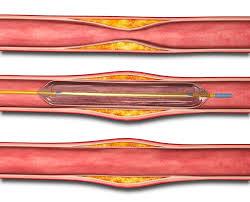 Arterial Leg Blockage | Angioplasty & Claudication Surgery