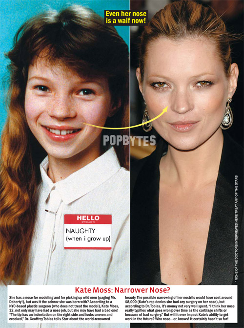 oh kate moss and her nose job  0585990da