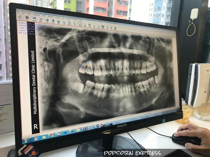 十分鐘得到牙齒預想圖!iTero Elements 口腔立體掃描機