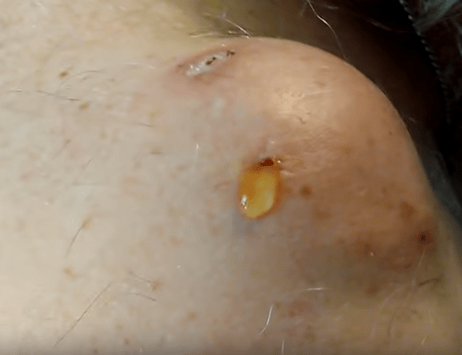 cyst popping on shoulder | New Pimple Popping Videos