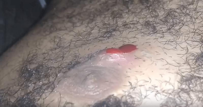Pubic hair videos
