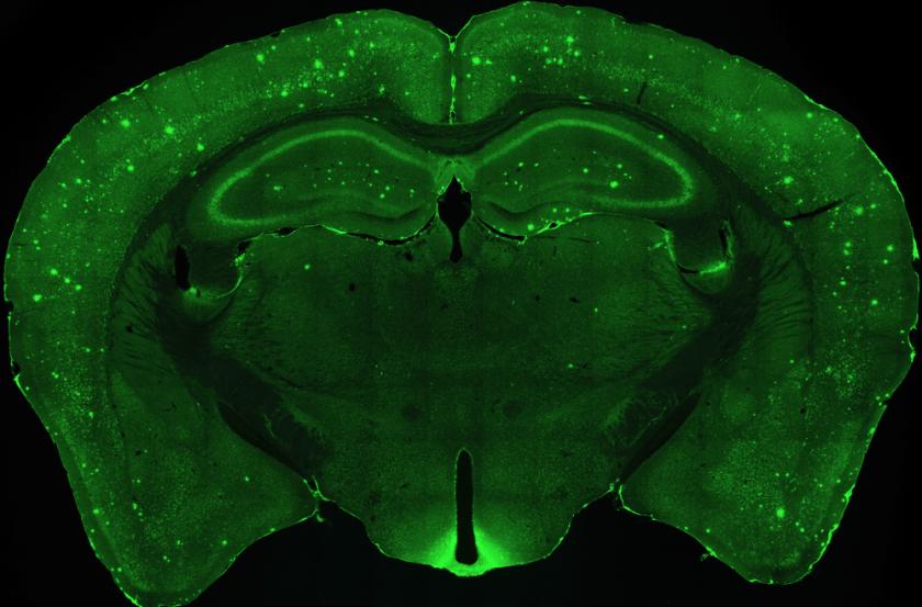 5x_brain-plaques-ad-mouse