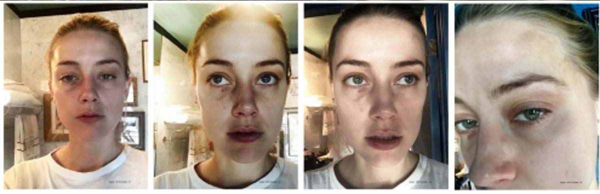 Amber Heard gives detailed account of alleged abuse during