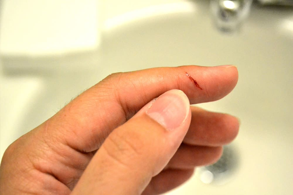 Tiny Things That Hurt So Much Ranked 14