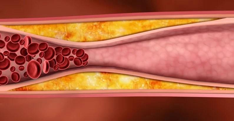 Учёные доказали – плохой холестерин полезен для здоровья