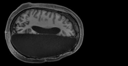 Исследование МРТ показывает, как функционируют люди только с половиной мозга