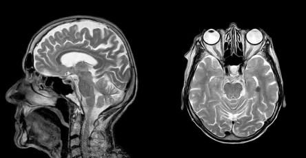 МРТ помог предсказать уровень интеллекта