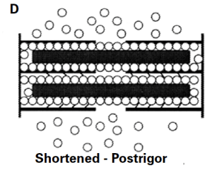 Figure D demonstrates that there is less space available in shortened post-rigor muscle within the sarcomere and thus the myofibril than in normal post-rigor muscle. In shortened pre-rigor muscle, space is reduced both laterally and  longitudinally within the sarcomeres.