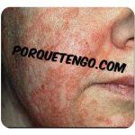 Porque Tengo Dermatitis Seborreica
