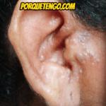 Porque Tengo Ruidos En El Oído Izquierdo Y Mareos
