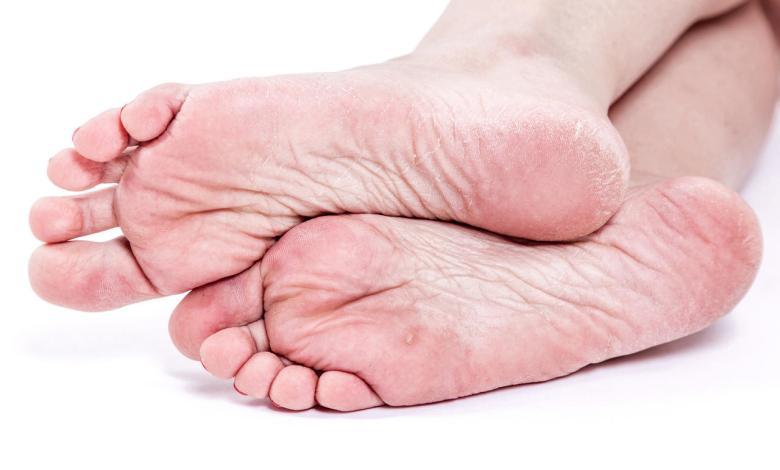 Pronto Socorro para Queimaduras - O que é úlcera do pé diabético?