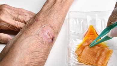 Pronto Socorro para Queimaduras - Quais as diferenças entre feridas agudas e crônicas?