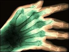 proteina-da-artrite-pode-proteger-contra-alzheimer