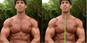 assimetria muscularr