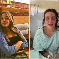 Mulher fica cega após maquiagem caseira causar queimaduras nos olhos dela