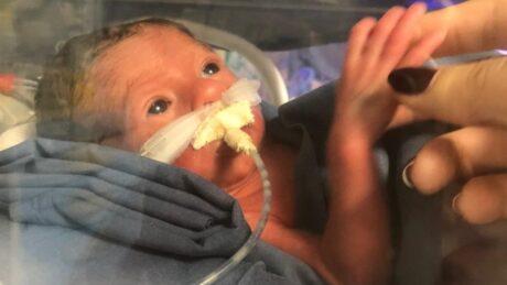 A bebê Maria, nascida de 30 semanas, na incubadora.