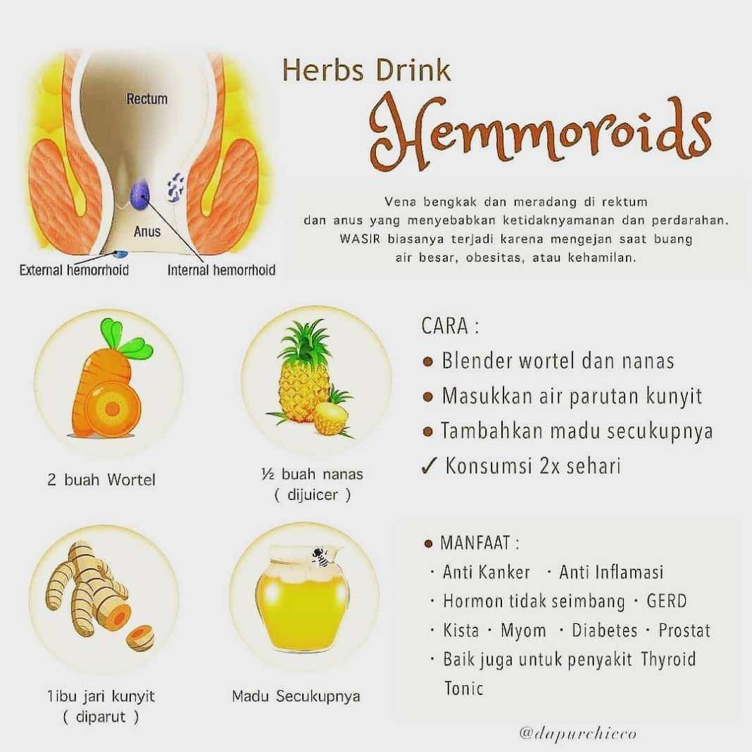 Info sehat, Wasir atau hemoroid ialah pembengkakan atau pembesaran dari pembuluh darah di usus besar bagia…
