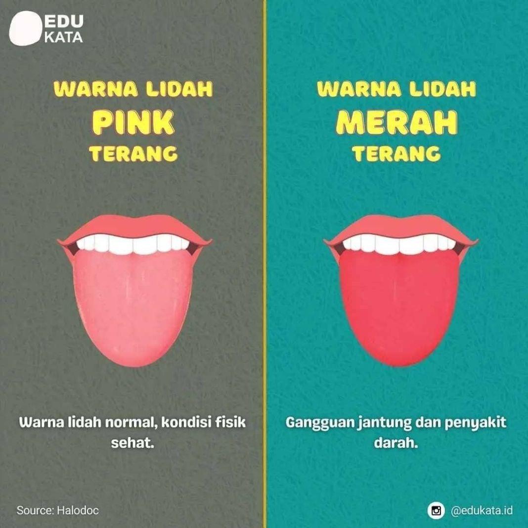 Info sehat, • • • • • • Warna lidah ternyata dapat menunjukkan kondisi kesehatanmu.  Coba cek lidahmu warna …