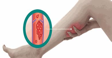 Risco de trombose aumenta em tempos de coronavírus. E não é só entre os mais velhos   ViDA & Ação