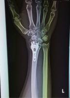 キーンベック病体験記 その9「やっと骨が」