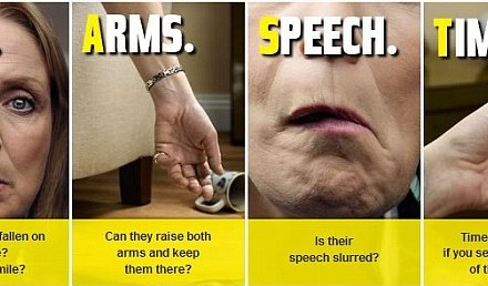 Thousands miss the early warning signs of stroke with two thirds not able to recognise the symptoms of a mini attack