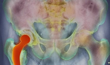 Hip replacement 'raises stroke risk' after operation