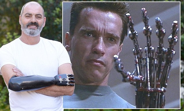 Man given 'terminator-like' prosthetic limb
