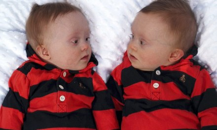 Mother's anger after officials grant one of her disabled identical twin sons disability benefit… and not the other