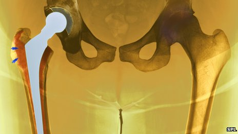 Hip replacement death rates show 'dramatic fall'