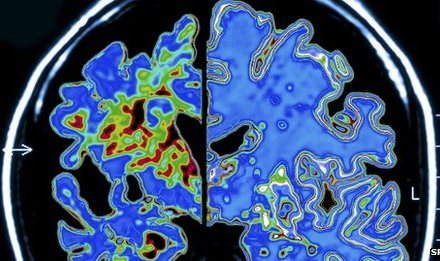 Alzheimer's insight from DNA study