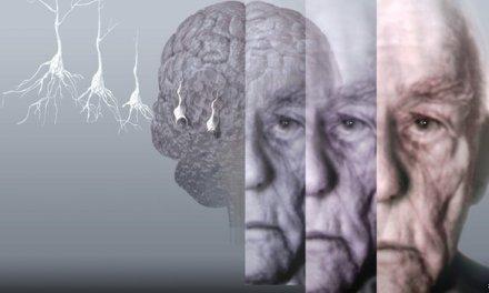 Dementia Facebook app to raise awareness of the illness