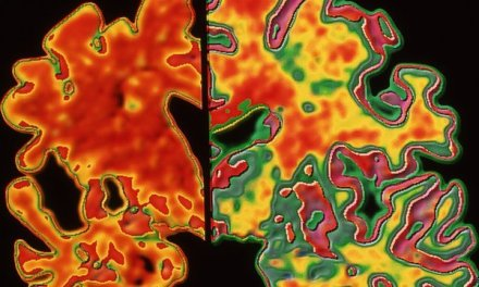 Brain may 'compensate' for Alzheimer's damage
