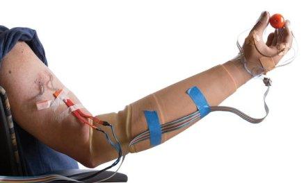 Bionic arm restores sense of feeling