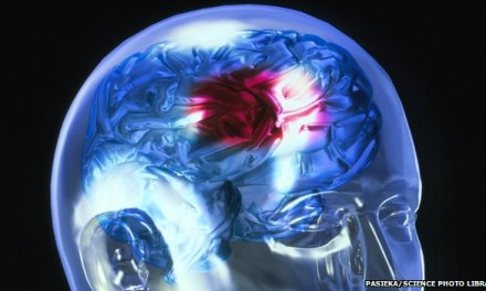 Stroke campaign 'saved 4,000 from serious disability'