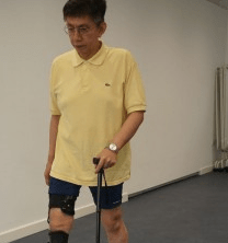 New funding partnership will help Post Polio Syndrome Patients walk independently