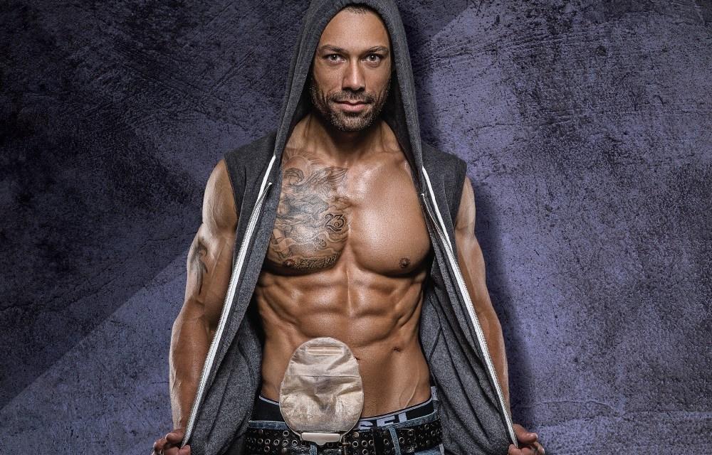 Stoma Warrior Blake Beckford