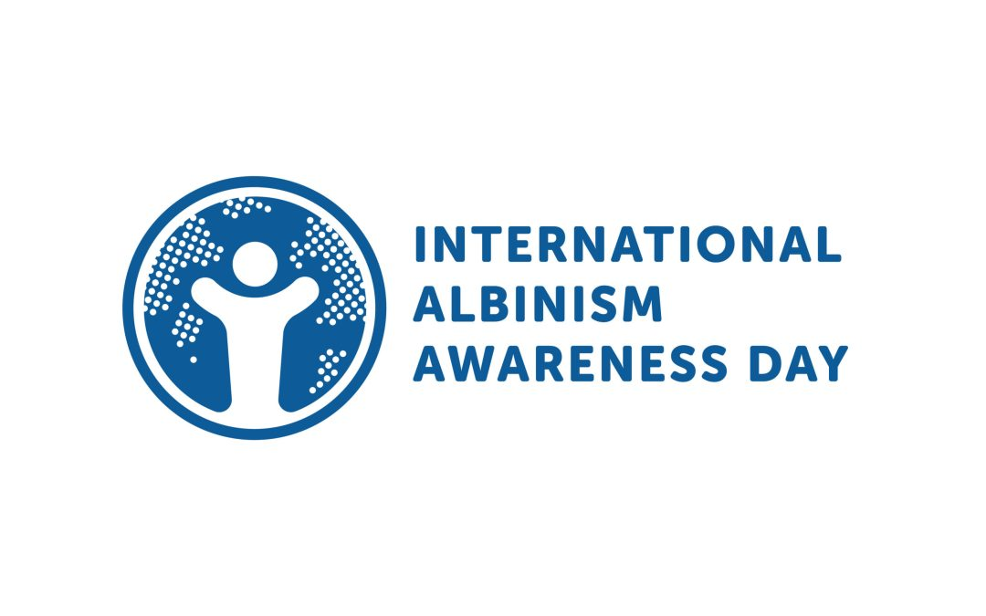 My hopes as an albinism parent for #IAAD2016